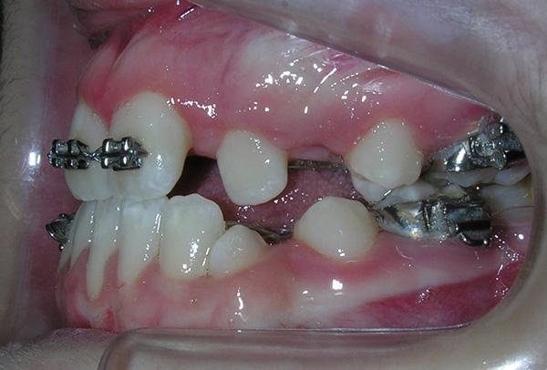 Ortodoncia complementaria