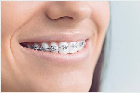 """Ortodoncia convencional: brackets metálicos, """"los de toda la vida""""."""