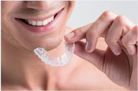 Ortodoncia plástica